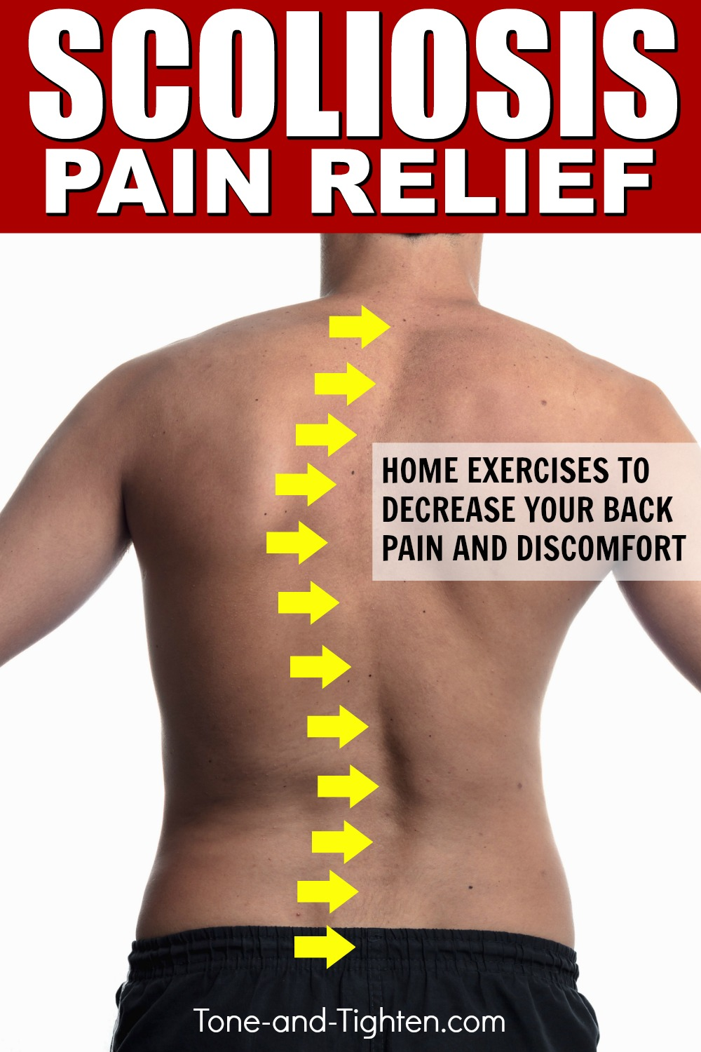 Best exercises to treat scoliosis at home! Physical therapy exercises to help treat your back pain.